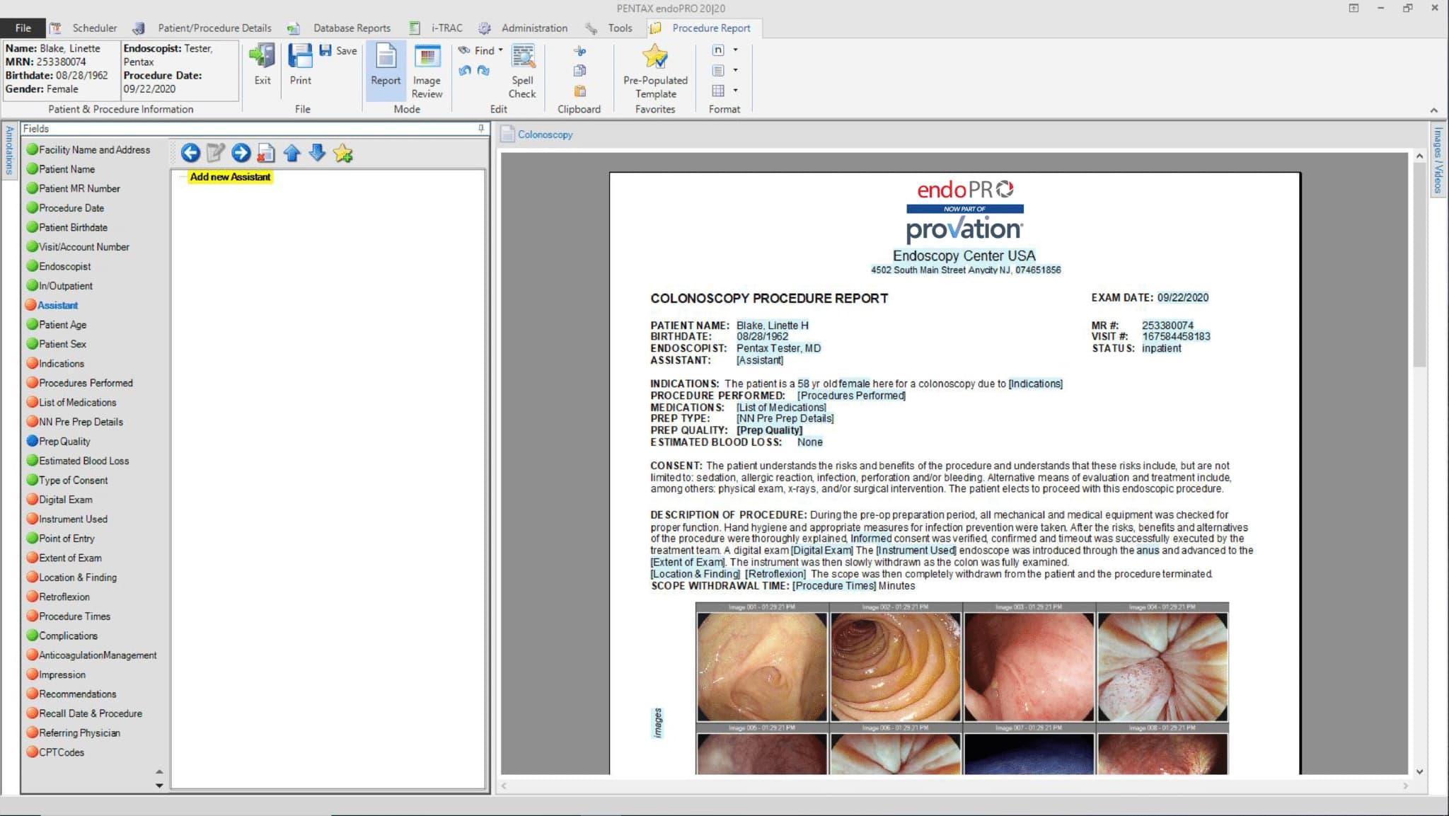 Provation endoPRO Procedure Report